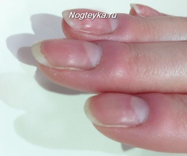 Припухлость вокруг ногтя