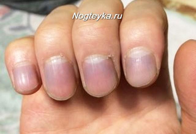 Ногти голубого или синеватого оттенка