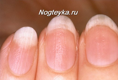 Рифленые ногти