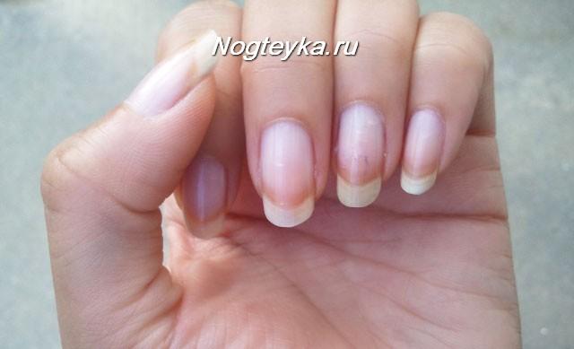 Бледные ногти
