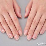 Ломкие и хрупкие ногти: 6 лучших рецептов по уходу и лечению