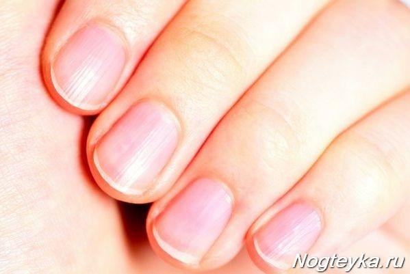 Полосы на ногтях